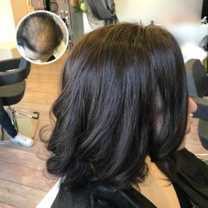 Haarverdichtung Oberkopf Nie Wieder Lichtes Haar Beauty Lounge In Bad Durkheim